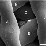 bioprosthetic ovary
